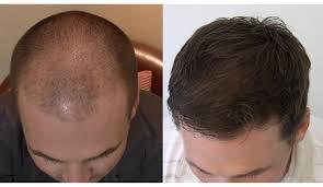 Hair Megaspray κριτικές - φόρουμ, σχόλια, απατη?
