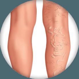 Schnelle Vena gel, συστατικά - λειτουργία